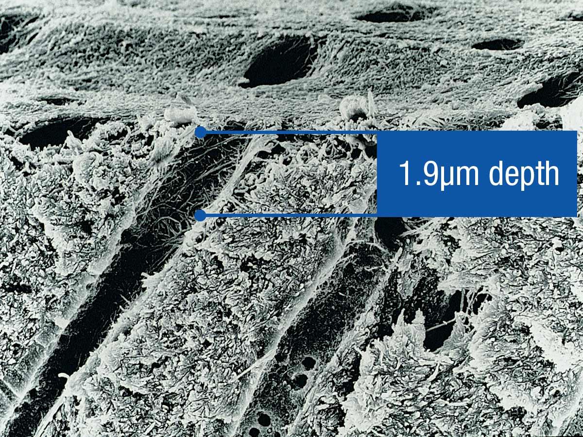 Ultra-Etch-Clincial-SEM-1.9um-depth.jpg