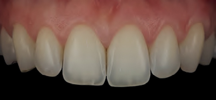 Smile Line MDP teeth photo 1.jpg