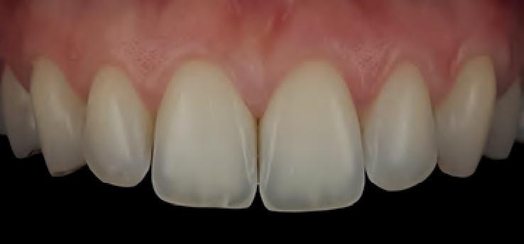 Smile Line MDP teeth photo 1.jpg