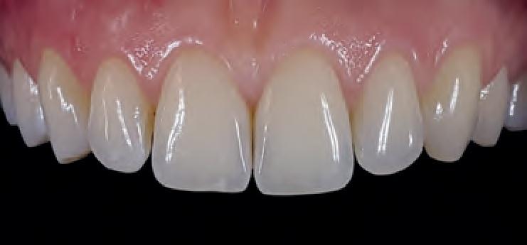 Smile Line MDP teeth photo 2.jpg