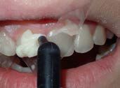 U Veneers - a new breed of dental restoration-10