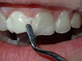 U Veneers - a new breed of dental restoration-11