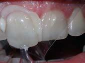 U Veneers - a new breed of dental restoration-12