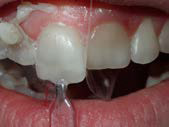 U Veneers - a new breed of dental restoration-13