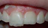 U Veneers - a new breed of dental restoration-14