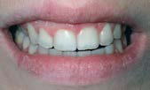 U Veneers - a new breed of dental restoration-16