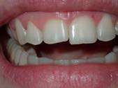 U Veneers - a new breed of dental restoration-2