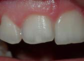 U Veneers - a new breed of dental restoration-3