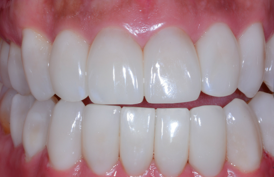 Black triangles after bioclear matrix