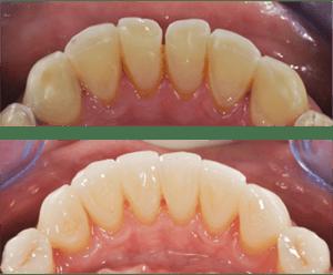 eroded dentition