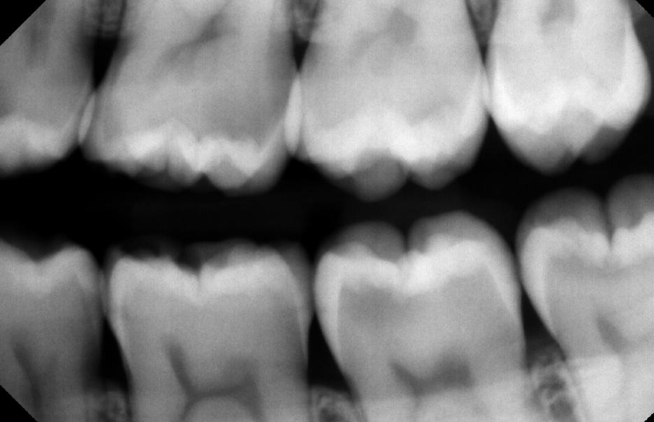 class-II-restorations-scan.png