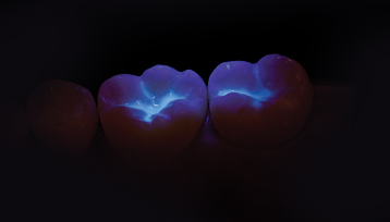 UltraSeal XT Hydro Teeth with Black Light Image