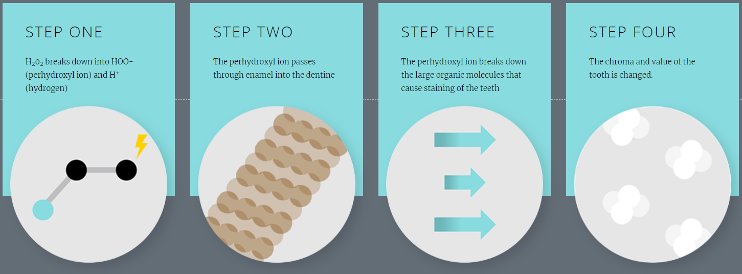 Four Steps to Whiter Teeth