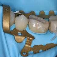 HALLER CLAMP 1