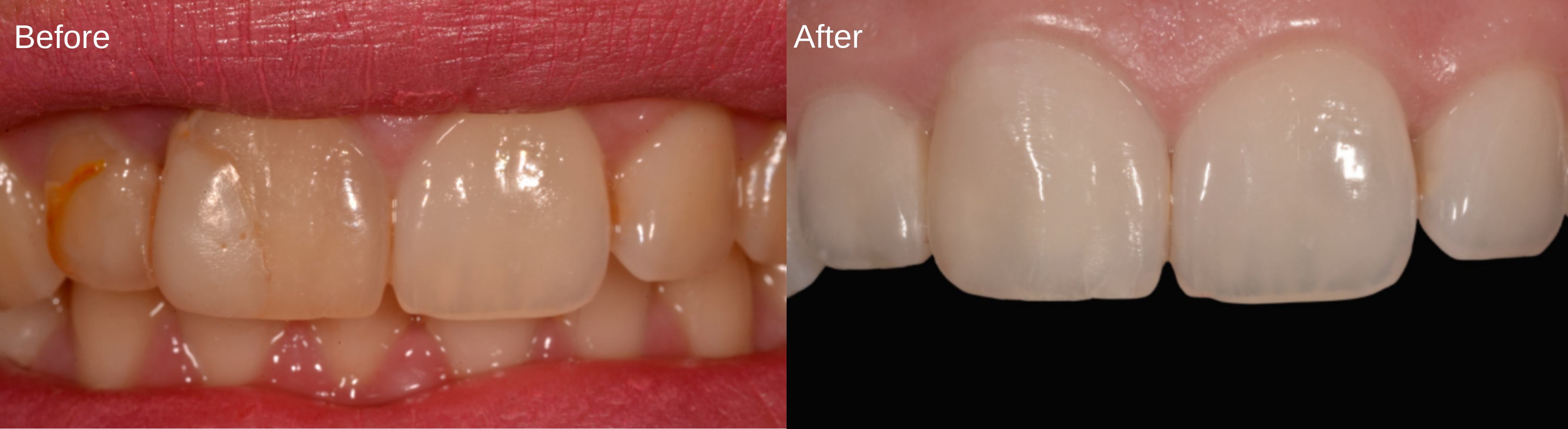 MONALDO - Before & After white dental beauty case study