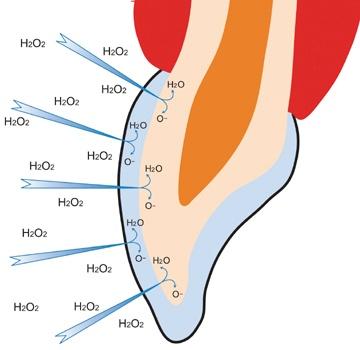 Opalescence Hydrogen Peroxide breakdown Image