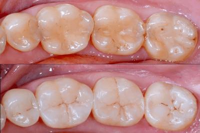 White Dental Beauty CompoSite