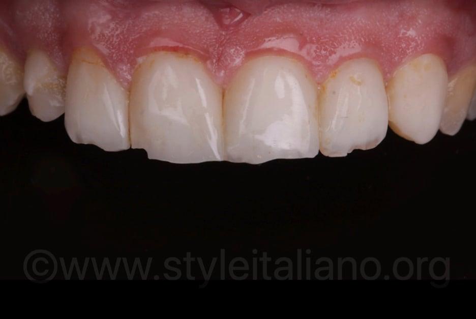 Styleitaliano_SHL-0719_03