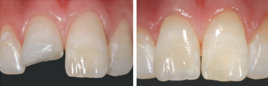Dental photography (before & after shot)