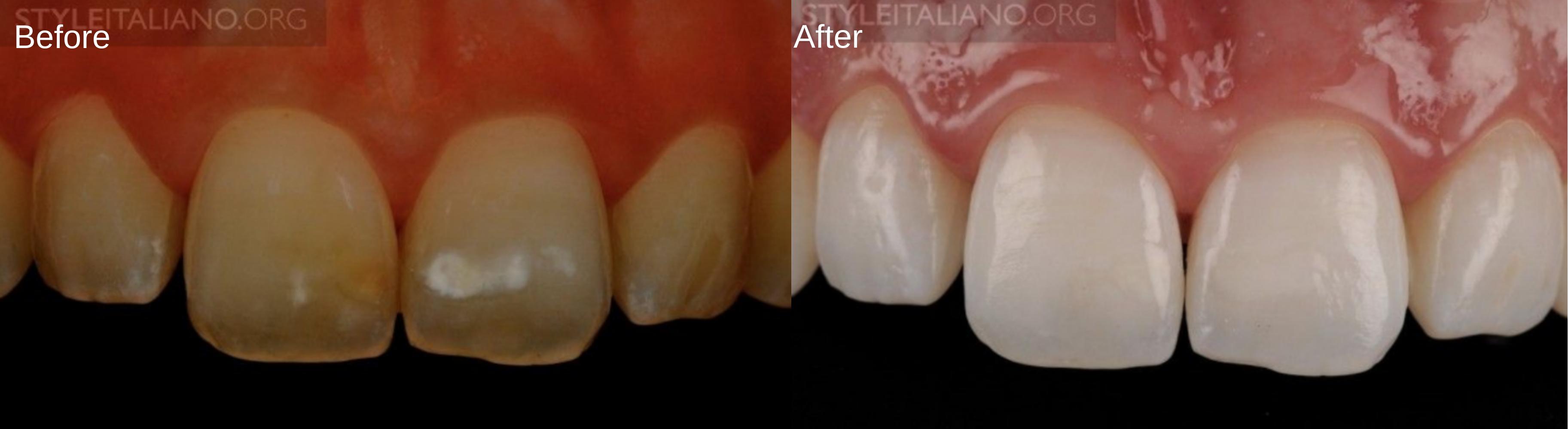 jordi man- Before & After (2)