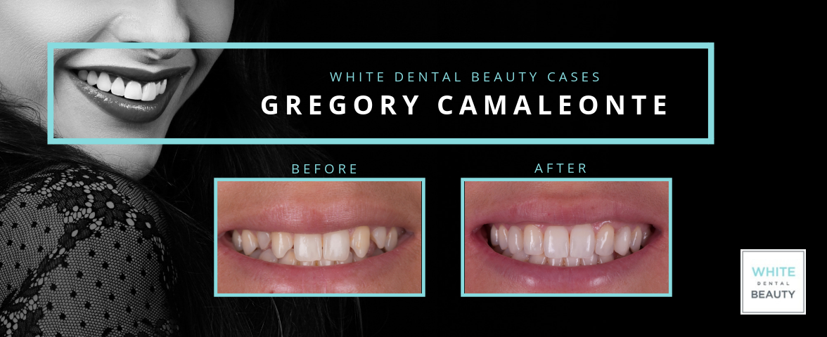 WHITE DENTAL BEAUTY CASE - GREGORY CAMALEONTE
