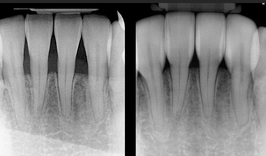 Bioclear case study X Ray image