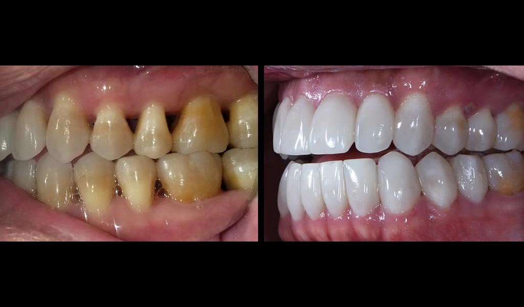 Before & After Bioclear Matrix - Black Triangle Treatment