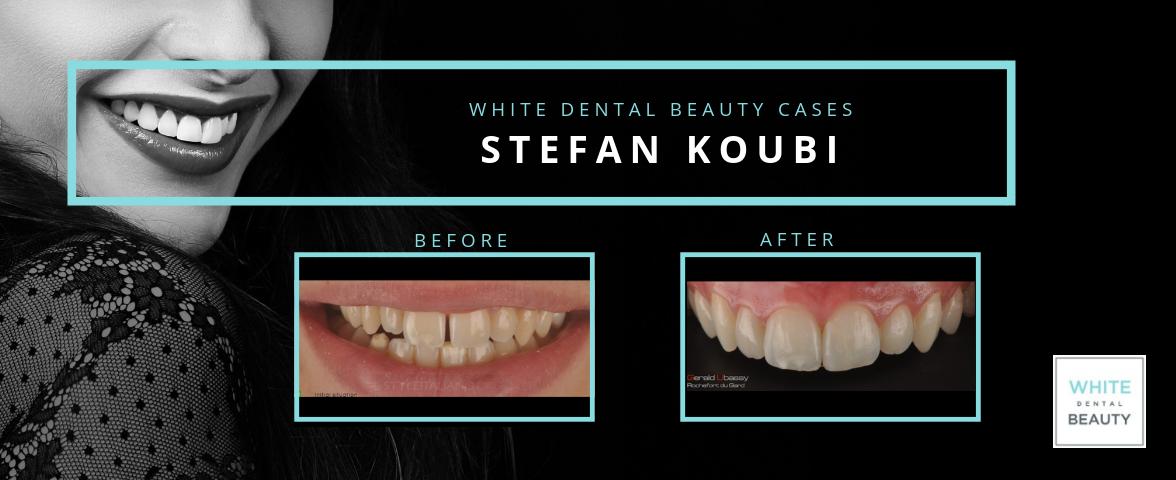 Copy of WHITE DENTAL BEAUTY CASE - koubi-1